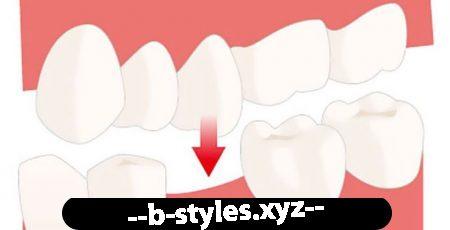 Відсутність зубів - наслідки і методи лікування